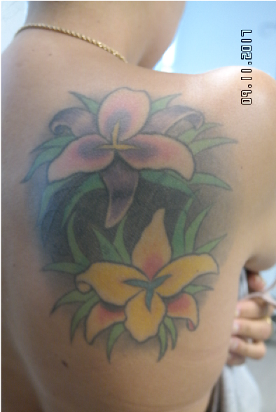 Tattoo Removal, This client wants this large image removed from her back.Visit back to see her progress.